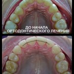 Работа ортодонта Головановой Д Б
